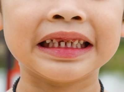 Tips Mencegah Gigi Berlubang Pada Anak, Coba 3 Langkah Ini, Moms