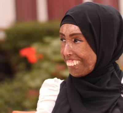Mengenal Scleroderma, Penyakit yang Membuat Farah Khaleck Jadi Inspirasi Banyak Wanita