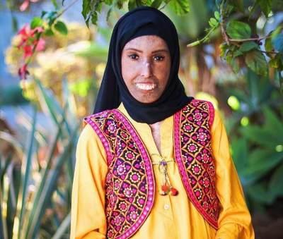 Farah Khaleck Menginspirasi Lewat Media Sosial