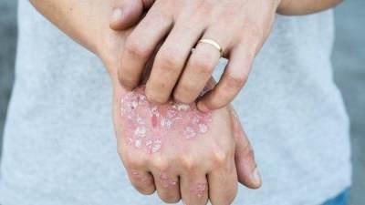 Mengenal Psoriasis, Penyakit yang Membuat Olivia Lazuardy Berdarah-darah Saat Bangun Tidur