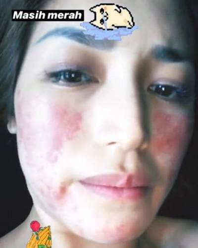 Berubah Drastis Penuh Ruam Merah, Ada Apa dengan Wajah Jessica Iskandar?