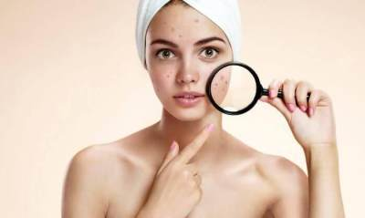 Ini 5 Tanda Kamu Membutuhkan Skincare Rutin Baru