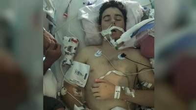 Waspada Bahaya Vape, Seorang Remaja di Amerika Alami Masalah Pernapasan Hingga Koma
