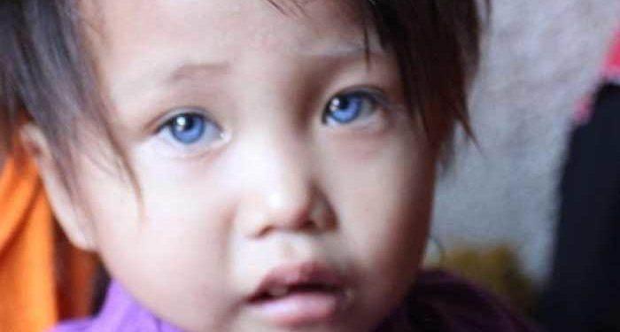 Hasil gambar untuk amelia bocah 4 warna mata