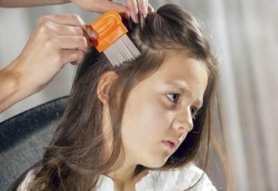 Cara Mengatasi dan Mencegah Penyebaran Kutu Rambut Di Kepala Anak