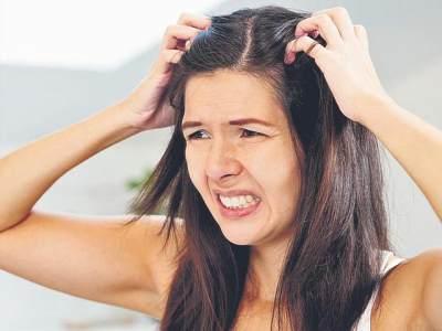 Tak Perlu Ke Salon, 6 Bahan Alami Ini Bisa Atasi Kulit Kepala Gatal Lho!