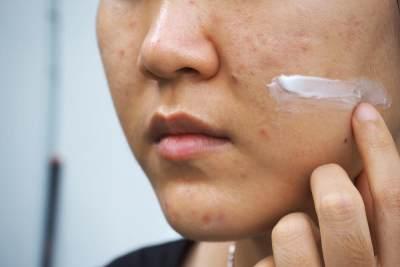 Sebelum Mencoba Skincare Baru, Yuk Kenali Perbedaan Breakout dan Purging!