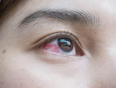 Iritasi atau Alergi