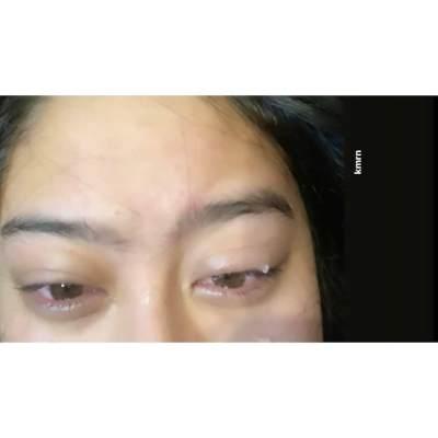Kornea Matanya Terluka dan Nyaris Buta, Salshabilla Adriani Kapok Pakai Softlens