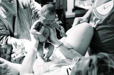 Bayi Laki-laki Lahir Tanpa Penis di Turki, Bagaimana Kondisinya?