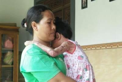 Sekujur Tubuh Anak Mengelupas Akibat Pernikahan Sedarah Orangtuanya