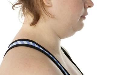 Trik Hilangkan Double Chin dengan 5 Gerakan Sederhana Ini