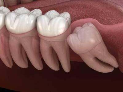 Ngilu Pada Gigi? Kenali Tanda Gigi Bungsu Geraham Tumbuh Tak Normal