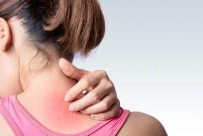 Obati Kulit Akibat Alergi dan Luka Bakar