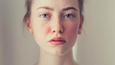 Jenis Penyakit Autoimun yang Sering Menyerang Wanita, Bagaimana Cara Mencegahnya?
