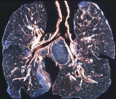Viral Penampakan Paru-paru Hitam Akibat Merokok Sebungkus Per Hari Selama 30 Tahun