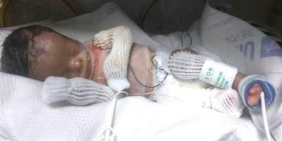 Kisah Haru Bayi Laki-laki yang Lahir Tanpa Kulit, Sempat Kritis dan Nyaris Dimakamkan