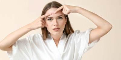 Benarkah Pasta Gigi Bisa Kempeskan Jerawat? Ini Kata Dokter Kulit