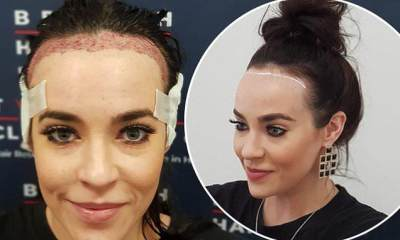 Lelah Dibully, Selebriti Ini Akhirnya Lakukan Transplantasi Rambut