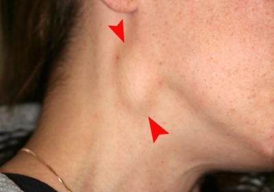 5. Lymphadenophathy