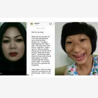 Kisah Ibu yang Putrinya Alami Cyber Bullying Karena Idap Seckel Syndrome