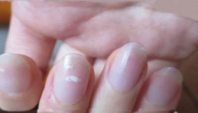 4 Penyebab Munculnya Bintik Putih Pada Kuku, Kekurangan Mineral Salah Satunya