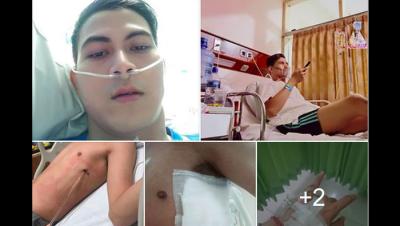 Viral Pengakuan Abang None Paru-paru Kolaps karena Rokok, Apa Itu Pneumotoraks?