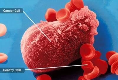 Agar Tak Terserang Kanker Ginjal Seperti Vidi Aldiano, Ini Tips Mencegahnya dari Ahli
