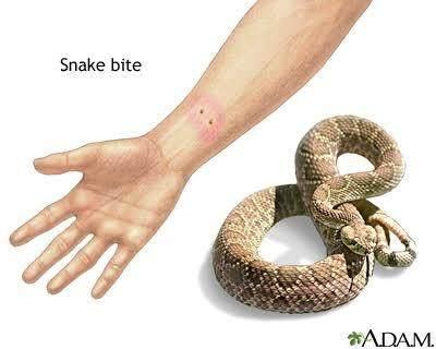 Benarkah Bawang Merah Bisa Menangkal Racun Ular Kobra? Ini Faktanya!