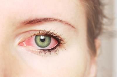 Waspada Bahaya Softlens! Kornea Mata Selebgram Ini Tergores Hingga Alami Luka
