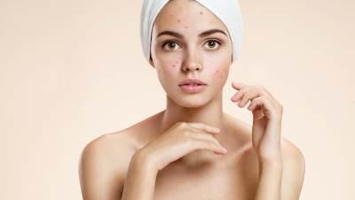 4. Perubahan kulit