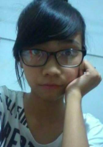Diam-diam Operasi Plastik, Wajah Wanita ini Sampai Tak Dikenali Keluarganya