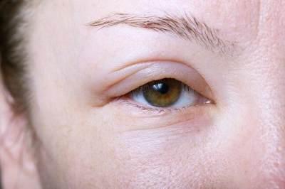 Kompres Air Dingin untuk Area Mata, Hidung dan Bibir