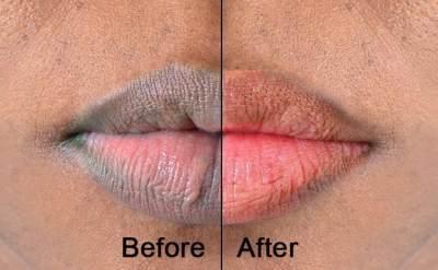 Bibir 'Pink' Natural dengan 5 Makanan Ini, Intip Caranya, Moms!